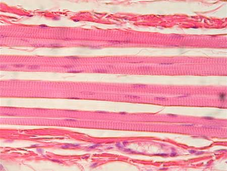 skeletal muscle, Muscles